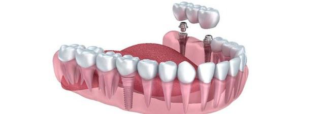 Impianti dentali: ecco cosa sono e come si fanno